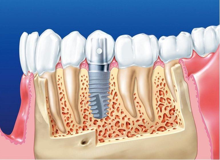 Ухоженные, безупречные зубы — признак хорошего тона и успешности