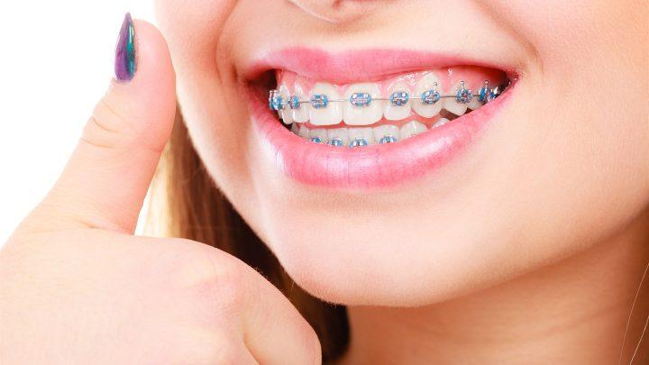Где найти хорошего ортодонта